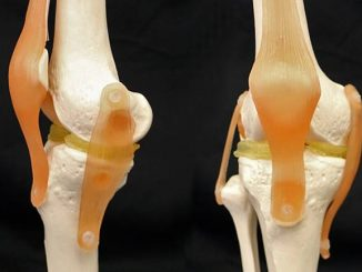 3-D-Printable Implants May Ease Damaged Knees